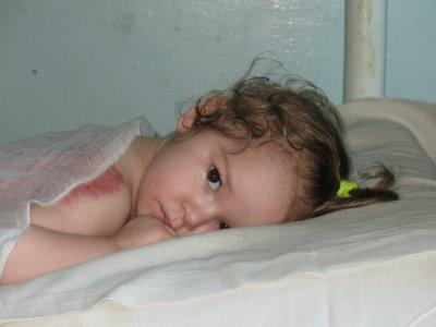 Буковинская школьница спасла жизнь племянницы, пожертвовав собственной красотой