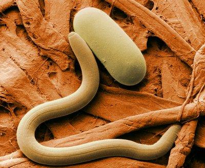 Зараження паразитами дозволяє вилікувати непереносимість глютену