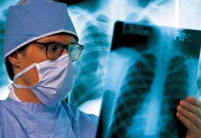 Агресивний туберкульоз може стати новим Ебола