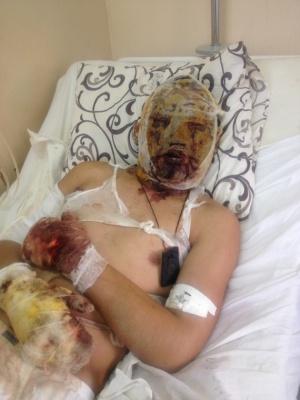 Контрактник з Бурятії розповів, як Росія закидає війська на Донбас