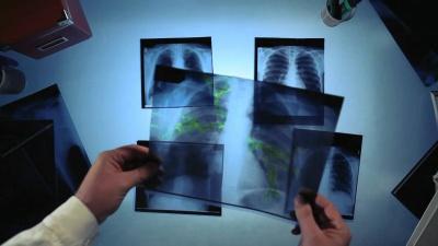 Пам'ятка для хворого на туберкульоз