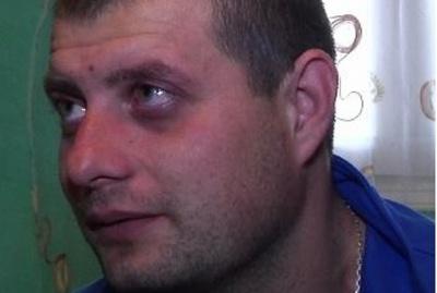 Буковинець частково осліп від поранень в АТО - лікарі сумніваються, чи добре він бачив до мобілізації
