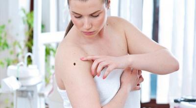 Що може вбити рак шкіри