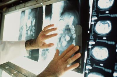 Онкологи точно можуть вирахувати ризик раку