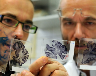 Знайшли засіб від хвороби Альцгеймера