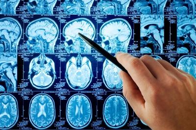 У мозку виявили «центр сарказму»