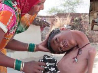Індійські лікарі не можуть покласти діагноз хлопчикові із «гумовою» шиєю