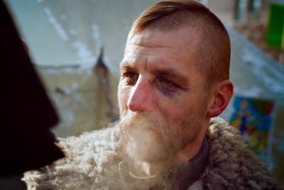 Козак Гаврилюк єдиний із нардепів допоміг хлопцеві, пораненому під Волновахою