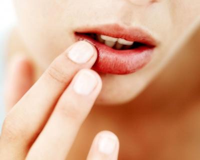 Чому тріскають губи