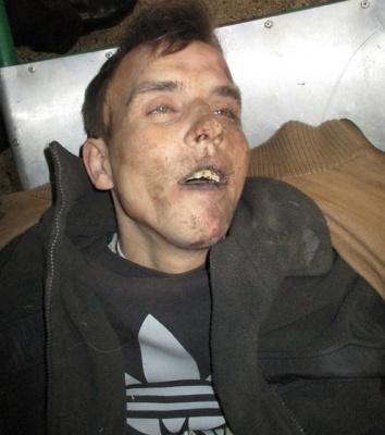 Поліція Буковини просить допомогти розпізнати загиблого в ДТП