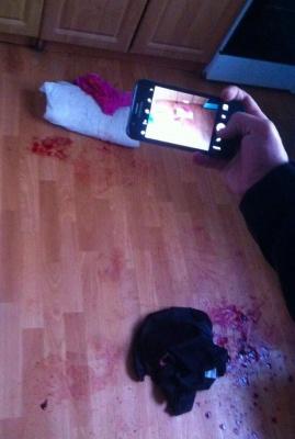 Бенкет у Чернівцях закінчився ножовими пораненнями