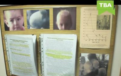 За 30 років не знайшли остаточної версії, чому в Чернівцях діти страждали від алопеції (ВІДЕО)