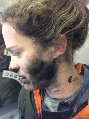 Бездротові навушники вибухнули прямо на голові у жінки: фото