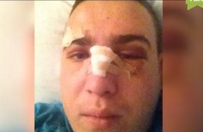 Вступился за девушку и получил ушибы: на Буковине школьников жестоко избили на дискотеке