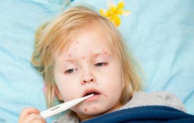 На Буковині – вже майже 200 хворих на кір