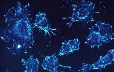 Microsoft хоче використовувати штучний інтелект, щоб знайти ліки від раку