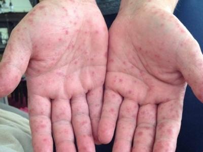 Спалах кору: на Буковині щодня реєструють по десять хворих