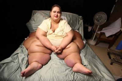 Найтовстіша жінка в світі схудла на 403 кг і стала красунею (ФОТО)