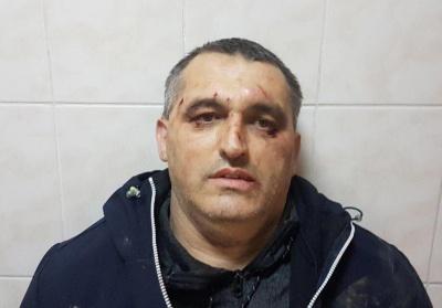 У Чернівцях поліція розпочала розслідування побиття представника «Стоп корупції»