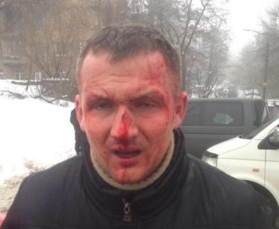 У Києві жорстоко побили нардепа (ФОТО)