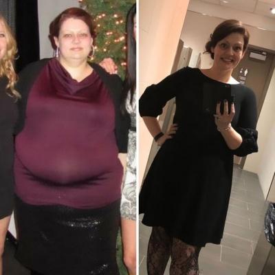 Жінка шалено схудла і поділилася своїм секретом