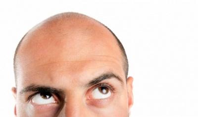 Чому чоловіки страждають від раннього облисіння: пояснення вчених