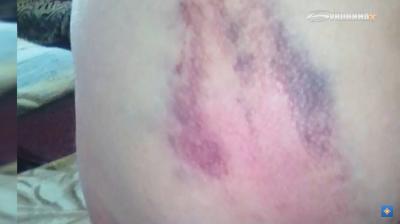 «Змушували стояти на колінах, били битками й ногами»: родичі в'язнів Чернівецького СІЗО розповіли шокуючі деталі інциденту