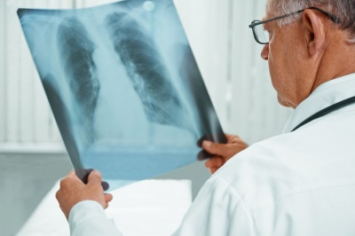 Україна посіла друге місце в Європі за захворюваністю на туберкульоз