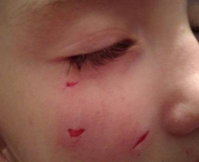 Лишила шрами на обличчі: у Чернівцях безпритульний собака покусав школярку