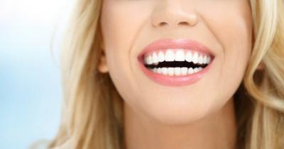 7 продуктів, від яких жовтіють зуби