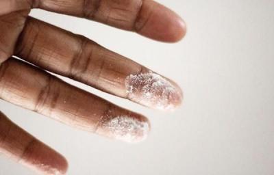 10 симптомів підвищеного цукру в крові, які не слід ігнорувати