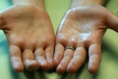 Як ваші руки сигналізують про проблеми зі здоров'ям
