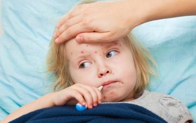МОЗ: Впродовж останнього тижня захворюваність на кір зросла на 35%