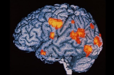 Отрута скорпіона допомогла вченим розробити новий метод доставки ліків в мозок