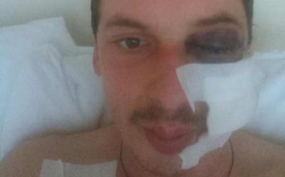 Боєць з Буковини на фронті отримав осколкове поранення в голову