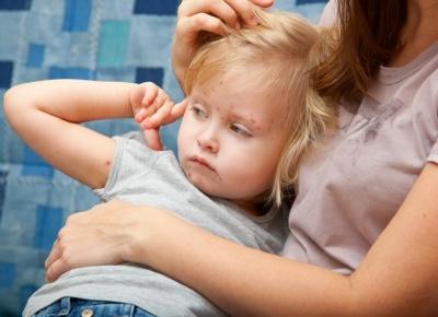 На Буковині минулого тижня на кір захворіло 179 осіб