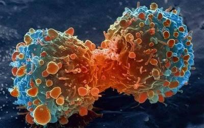 Який продукт здатний боротися з раком печінки