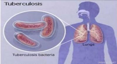 Медики перерахували ранні симптоми туберкульозу