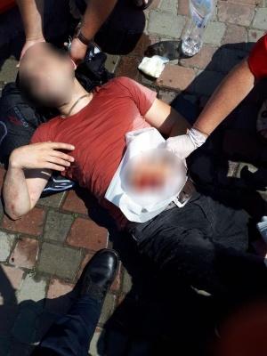 У Чернівцях мотоцикліст отримав травми внаслідок зіткнення з авто – фото