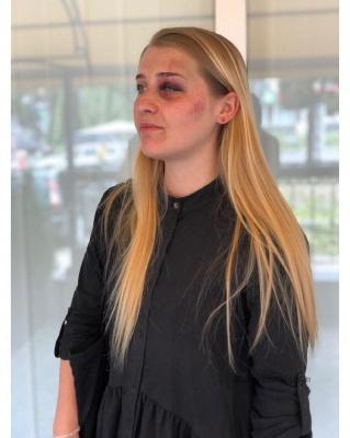 «Безжально бив кулаками»: у Чернівцях грабіжник напав на дівчину, шукаючи гроші та прикраси