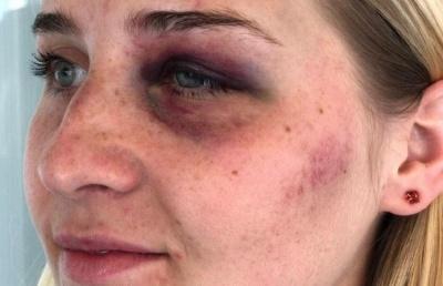 Поліція відреагувала на жорстоке побиття дівчини у Чернівцях