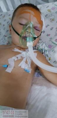 3-річний хлопчик з Чернівців випав з вікна 2 поверху, дитина у важкому стані