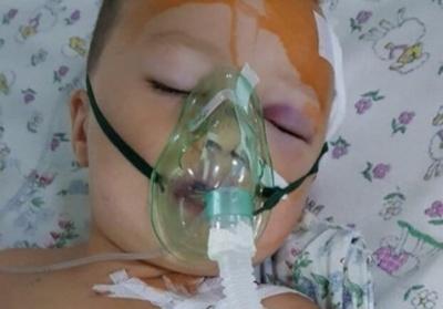 «Малюк дуже сильний»: що відомо про стан 3-річного хлопчика з Чернівців, який випав з вікна 2 поверху
