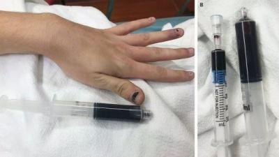 Кров дівчини посиніла через знеболювальне