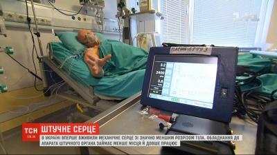 Вперше в Україні пацієнтові імплантували штучне міні-серце - відео
