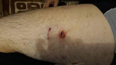 У Чернівцях зграя агресивних собак напала на чоловіка
