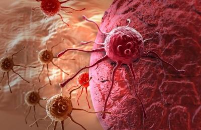 Чотири найбільш очевидні симптоми раку, які не можна терпіти