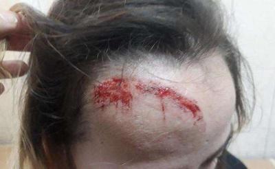 У центрі Чернівців на дівчину обвалилась штукатурка з балкону - фото