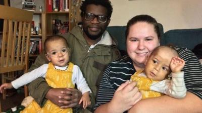 В Уельсі недоношене немовля врятували обійми брата-близнюка