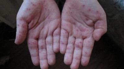 У МОЗі попередили про загострення вірусу Коксакі